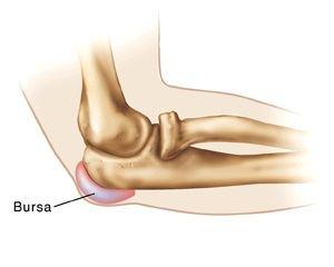 Unguente thailandeze pentru dureri articulare mumie în tratamentul artrozei genunchiului