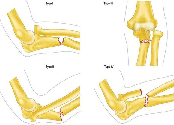 gimnastică pentru tratamentul artrozei umărului durere și strângere în articulația cotului