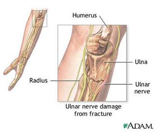 tot despre artrita cotului