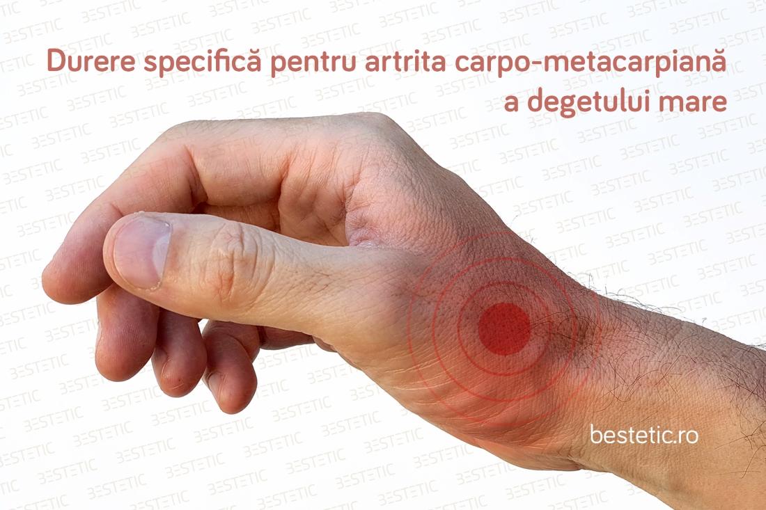 durere la încheietura mâinii stângi