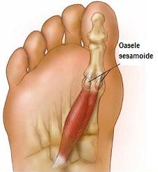 degetele de la picioare pot amorți de artrită