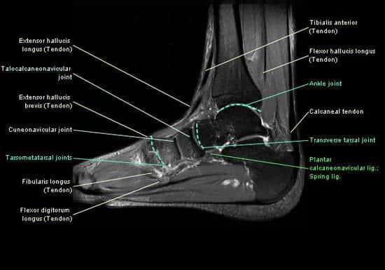 vătămarea gleznei întorsă dacă articulațiile degetului mare doare