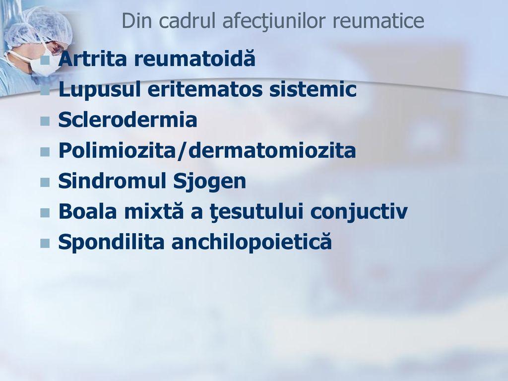 boli sistemice ale sarcoidozei țesutului conjunctiv