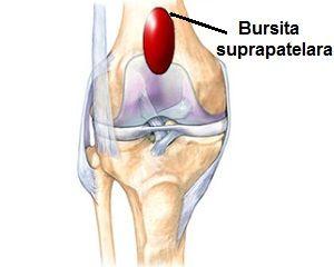 tratamentul bursitei infrapatellare a genunchiului