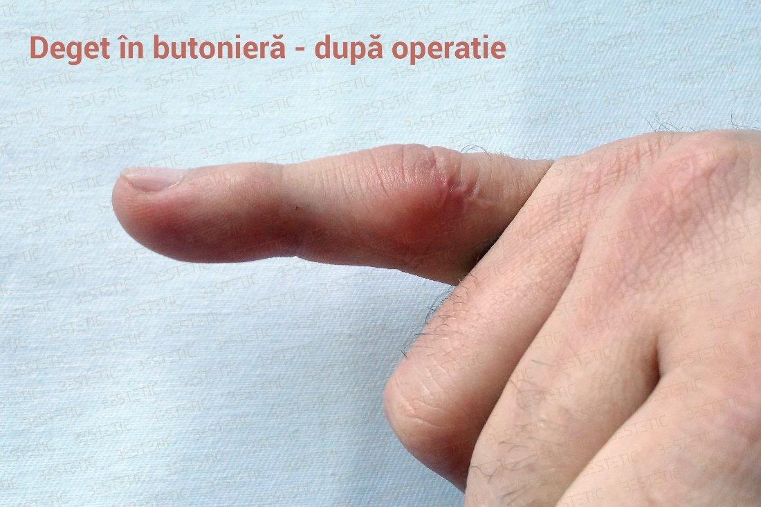 Artroza mainilor: de ce apare si cum se trateaza Durere interfalangiană a unui deget