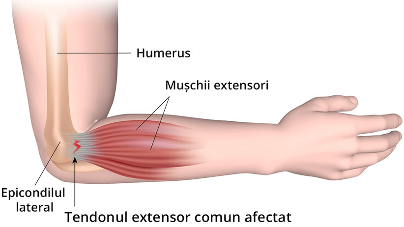 Epicondilita laterală (tennis elbow)