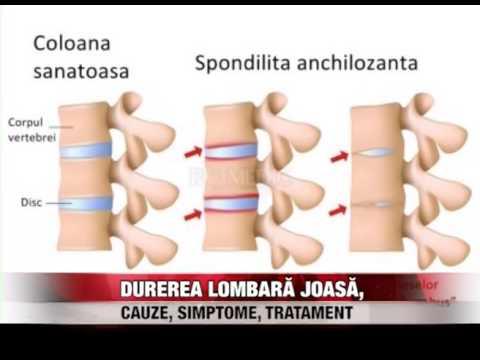 unguent pentru inflamația articulațiilor degetelor tratamentului mâinii boala de contracție articulară