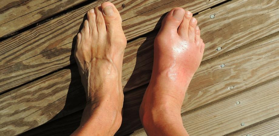 dureri ale gleznelor evaluarea durerii articulare