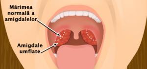 Tonsilectomia cu sau fara adenoidectomie   Proceduri medicale