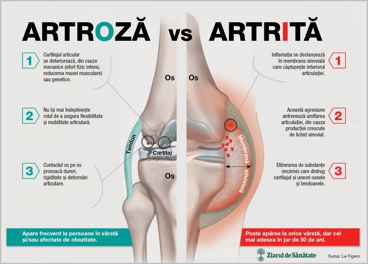 dureri de artrită