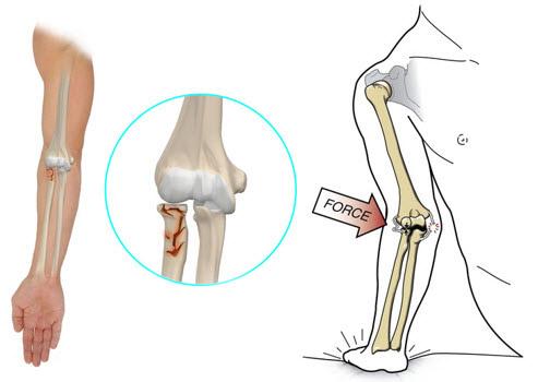 dureri de cot os radial sinovita postoperatorie a tratamentului articulației genunchiului