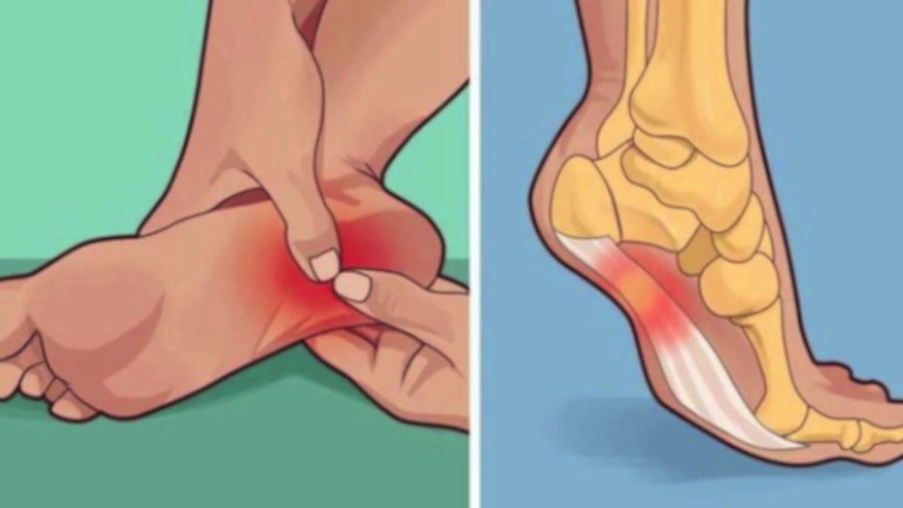 dureri de gleznă și crăpături tratament cu artroza saramura