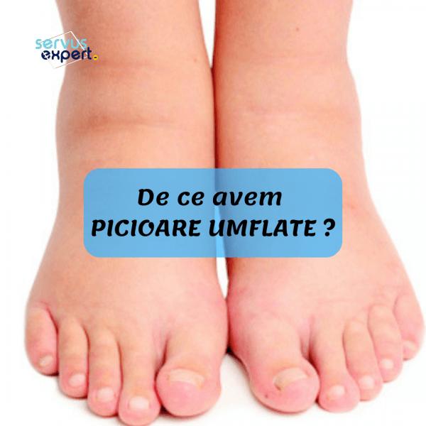 dureri de picioare umflate în articulație deformând artroza articulațiilor interfalangiene ale piciorului 1 grad