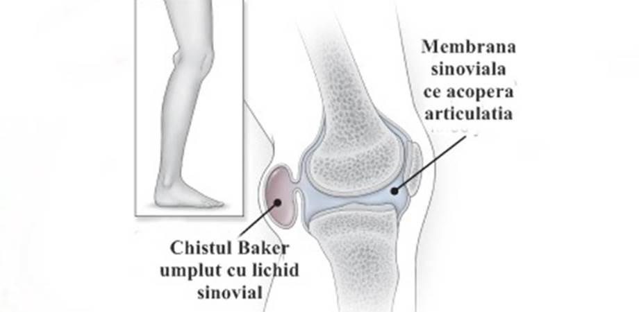 deteriorarea sacului sinovial al genunchiului dureri articulare pe termen scurt ce este