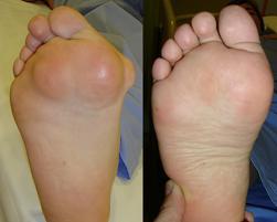 Artrita. Tratament natural si remedii naturiste. - sfantipa.ro blog