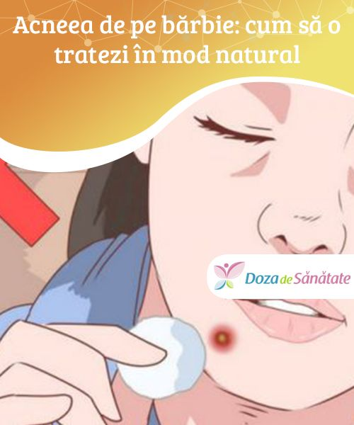 Cum sa tratezi eficient migrena