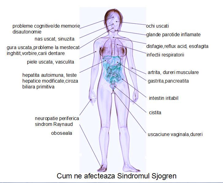 dureri articulare și ochi uscați artroza posttraumatică a mâinii și tratamentul acesteia