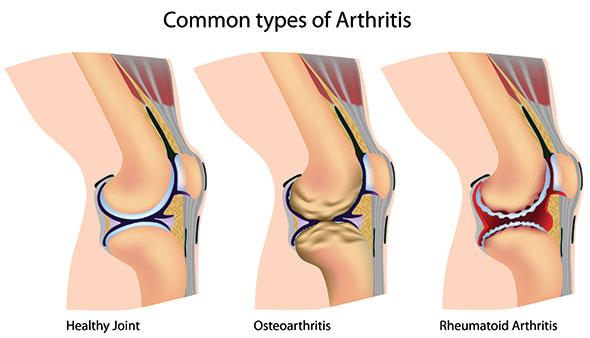 gonartroza unguentului genunchiului dureri de umăr în față