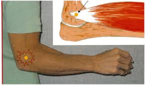 Tratamentul epicondilitei externe a articulației cotului, Epicondilita mediala si laterala