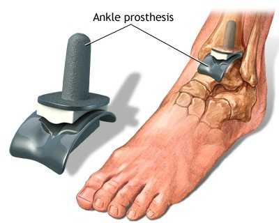 gradul de tratament pentru artroza gleznei
