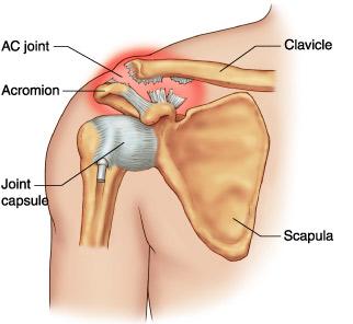 unguente pentru ruperea ligamentelor articulației umărului