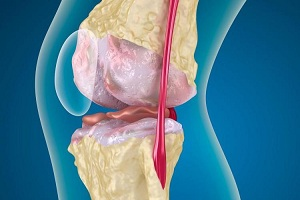 гонартроз мкб 10 medicamente pentru dureri articulare la sportivi