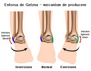 entorsa genunchiului cum să tratezi praf complex de glucozamină condroitină