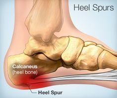 pastile articulare la cot artroza genunchiului recenzii de 2 grade