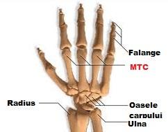 Artrita se năpustește pe falangele degetelor - sfantipa.ro