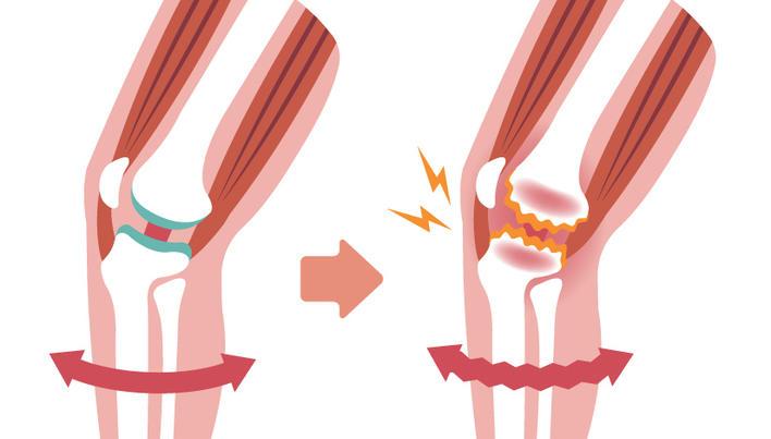 tratamentul gon artrozei durere în articulația cotului când este apăsat