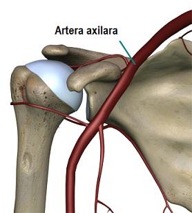 tratamentul osteoartrozei de gradul 2 al articulației umărului