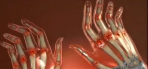 cum arată artrita pe brațe