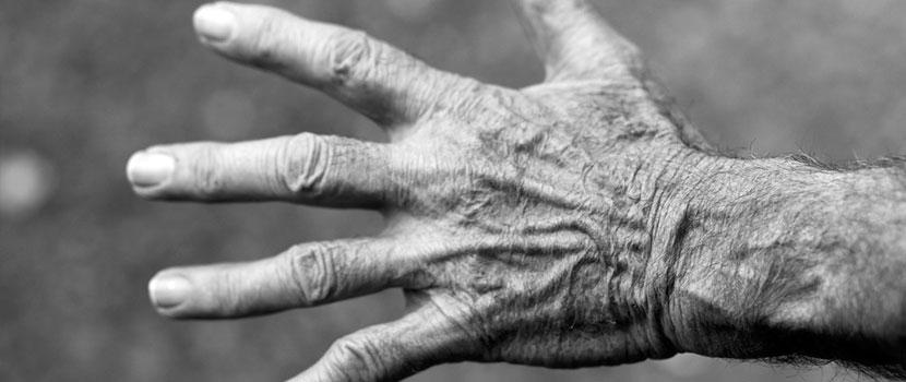 Artrita reumatoida (reumatismul) si osteoartrita: Cauze si tratamente | sfantipa.ro