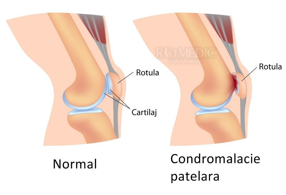 durere deasupra articulației genunchiului