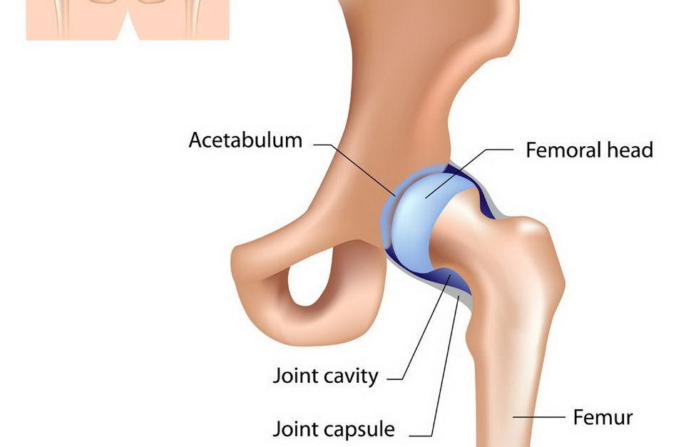 Durere la nivelul şoldului Articulația șoldului doare la vârstnici