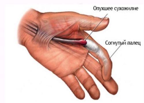 datorită căreia articulațiile degetelor pot răni