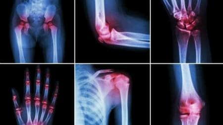 scăpând de durerile de genunchi durere în articulațiile roșii