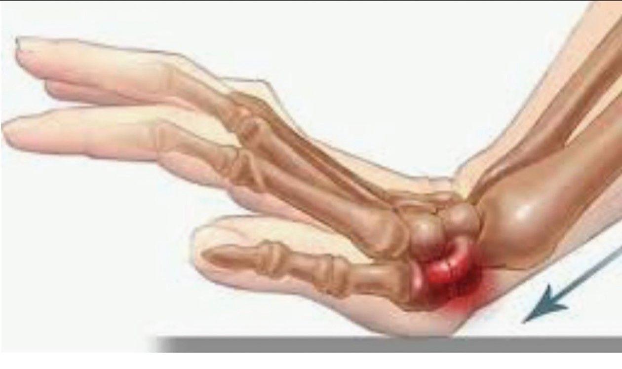 fierbe durerile articulare Retete de tratament Vanga articulare