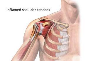 umflarea tendonului articulației umărului