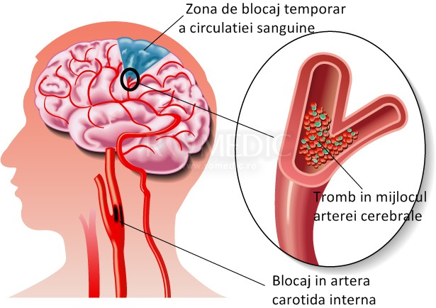 Limfologia - Edemul ischemic