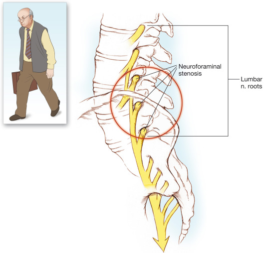 Scăderea articulare produce durerii