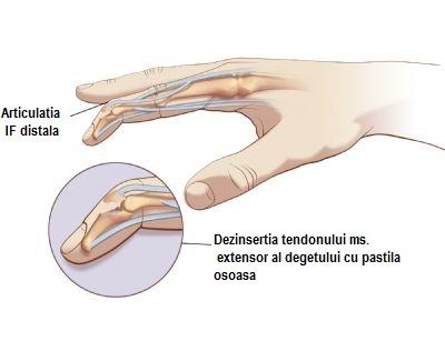 durere interfalangiană a unui deget