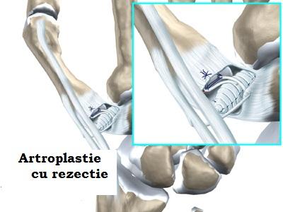 unguent pentru articulații într-un tub artrita cauzează glezna