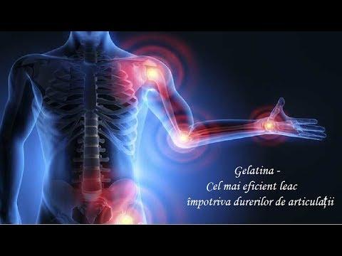 glanda tiroidă rănește articulațiile creme de răcire articulară