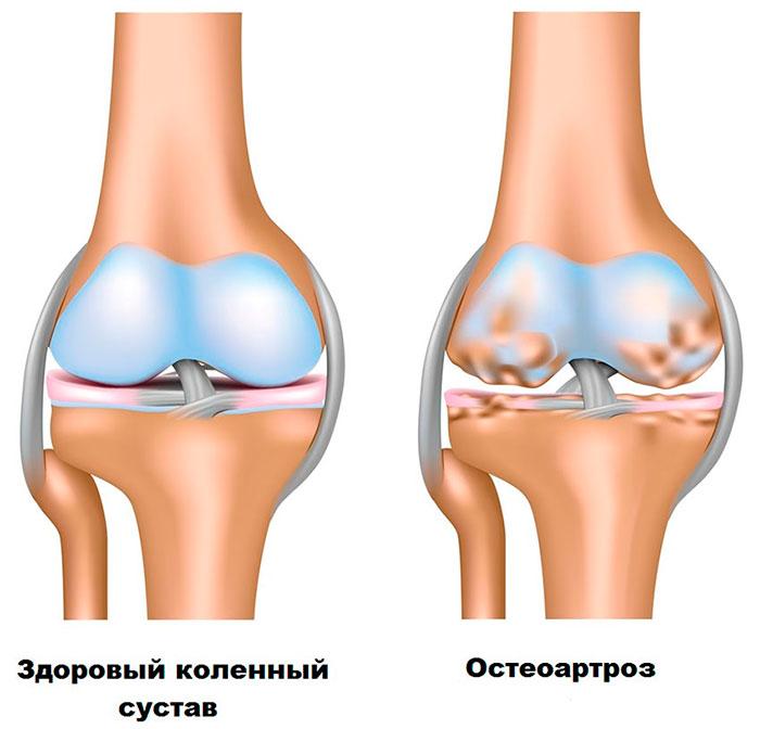 histogeneza creșterea și regenerarea țesutului conjunctiv retete tratament pentru artroza