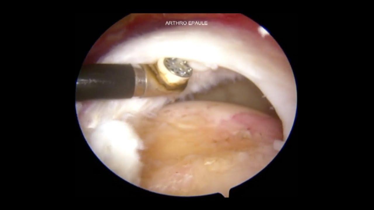 artroza articulației călcâiului ceea ce face rănirea articulațiilor umărului