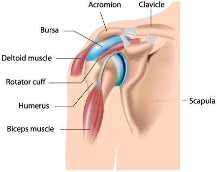 Instrumente pentru tratamentul articulației umărului, Tendinita calcică a umărului
