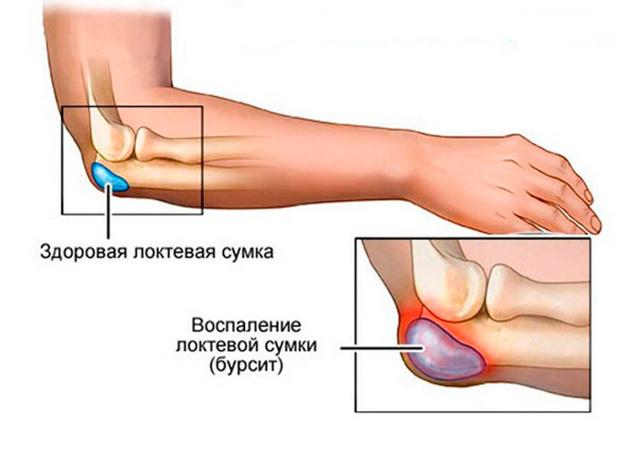 articulațiile de pe vârfuri încep să doară atac acut de durere la genunchi