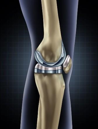 lectură artroza post-traumatică a articulației genunchiului