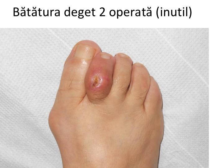 leziuni la nivelul articulației degetelor de la picior